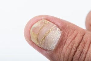 psoriasis affecting the nail