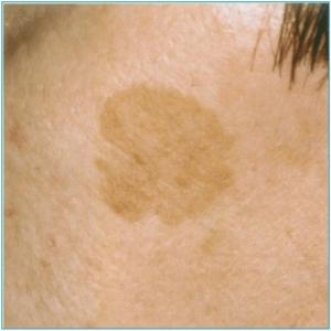 Freckles, ephelides, lentigines