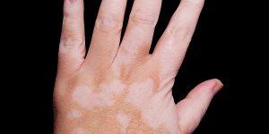 vitiligo-2-rect