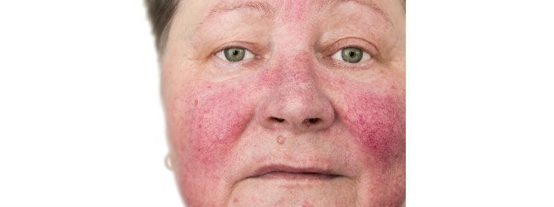 Rosacea, pink cheeks, Harley Street Emporium