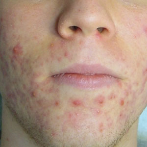 plexr-acne-after-treatments-harley-street-emporium