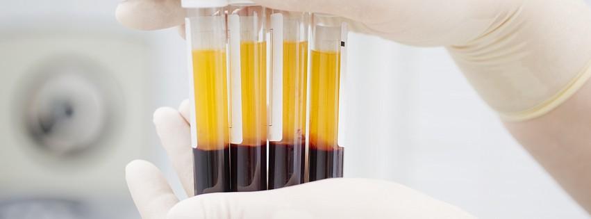 blood-plasma-prp-oshot-revulva-journal-harley-street-emporium