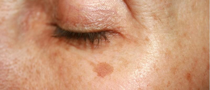 sun-damage-pigmentation-jounral-harley-street-emporium