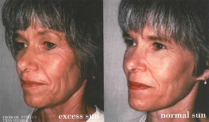 sun-damaged-twins-skincare-SPF-journal-harley-street-emporium