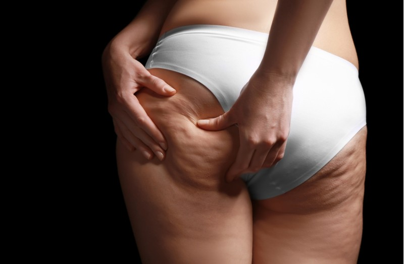 carousel-cellulite-what-works-to-get-rid-of-it-main-journal-harley-street-emporium