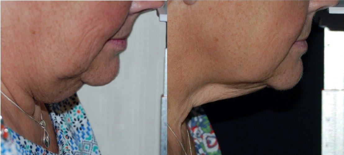 strawberry-lift-doub;e-chin-treatments-harley-street-emporium