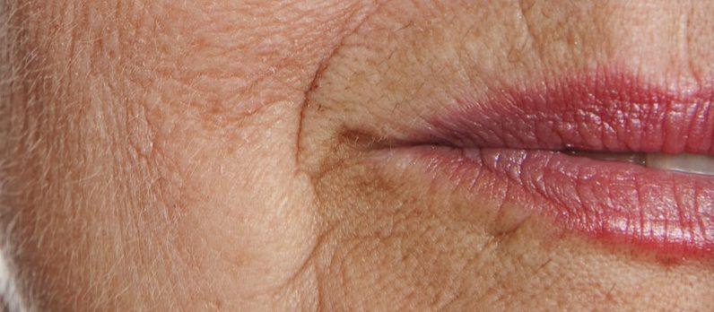 wrinkled-lips-journal-harley-street-emporium