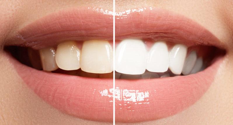 teeth-whitening-journal-harley-street-emporium