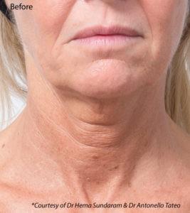 profhilo neck 1 treatments harley street emporium