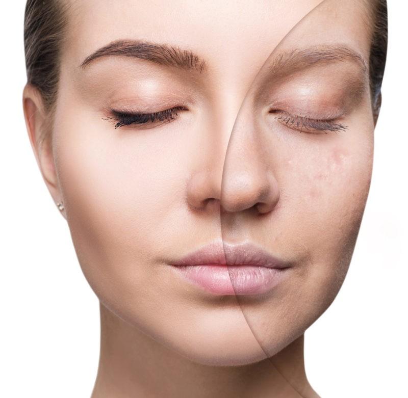 acne-scars-harley-street-emporium