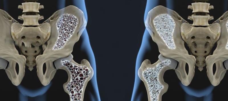 menopause-osteoporosis-harley-street-emporium