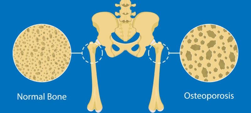 osteoporosis-hrt-manyonda-jounral-harley-street-emporium