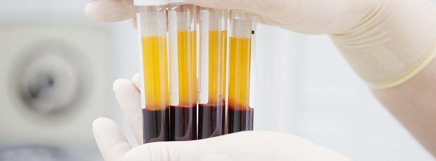 blood-plasma-prp-harley-street-emporium