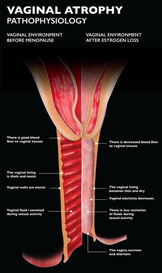 vaginal-atrophy-gsm-2-journal-harley-street-emporium