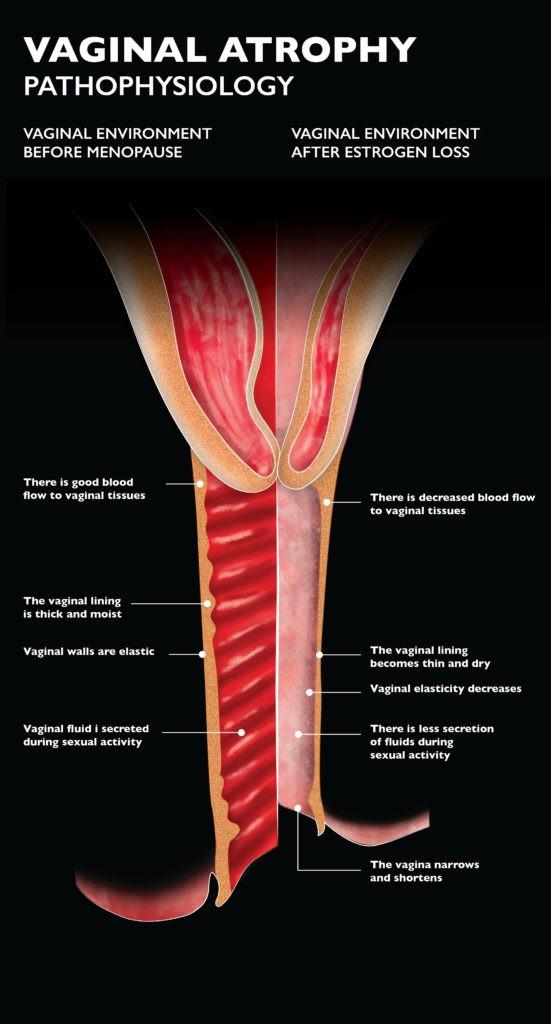 vaginal-atrophy-illustration-harley-street-emporium