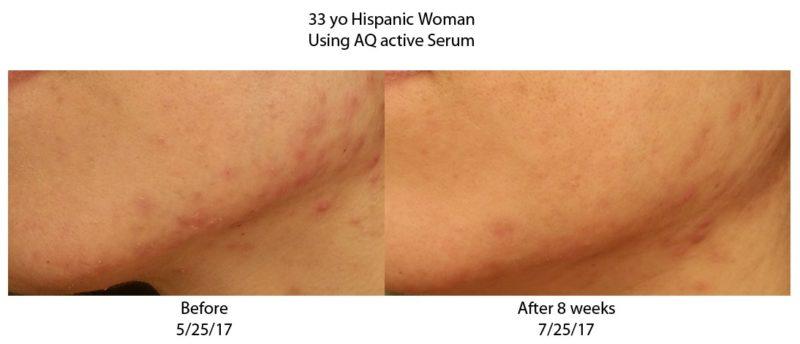 AQ-skin-solutions-acne-shop-halrey-street-emporiu,