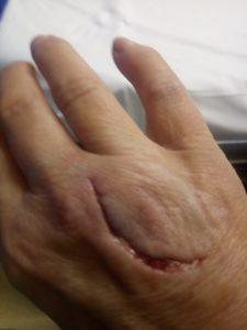 Nourisil dog bite before harley street emporium