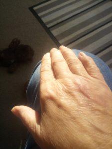 Dog bite wound after harley street emporium