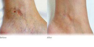 Cranley-clinic-thread-veins-ankle-ND-Yag-BandA-harley-street-emporium