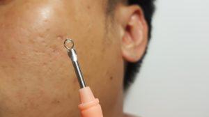 blackhead-pimple-extractor-harley-street-emporium