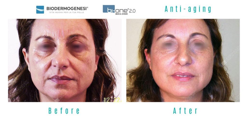 biodermogenisis-skin-rejuventation-harley-street-emporium