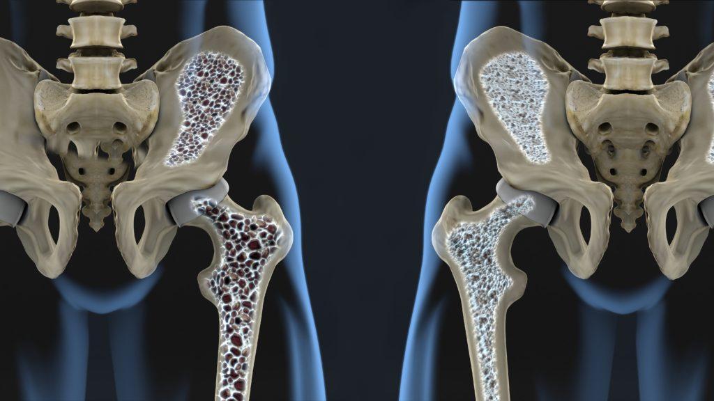 osteoporosis-harley-street-emporium