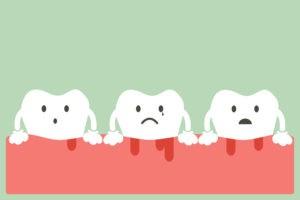 bleeding-gums-menopause-harley-street-emporium