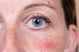 rosacea-rashes-menopause-harley-street-emporium