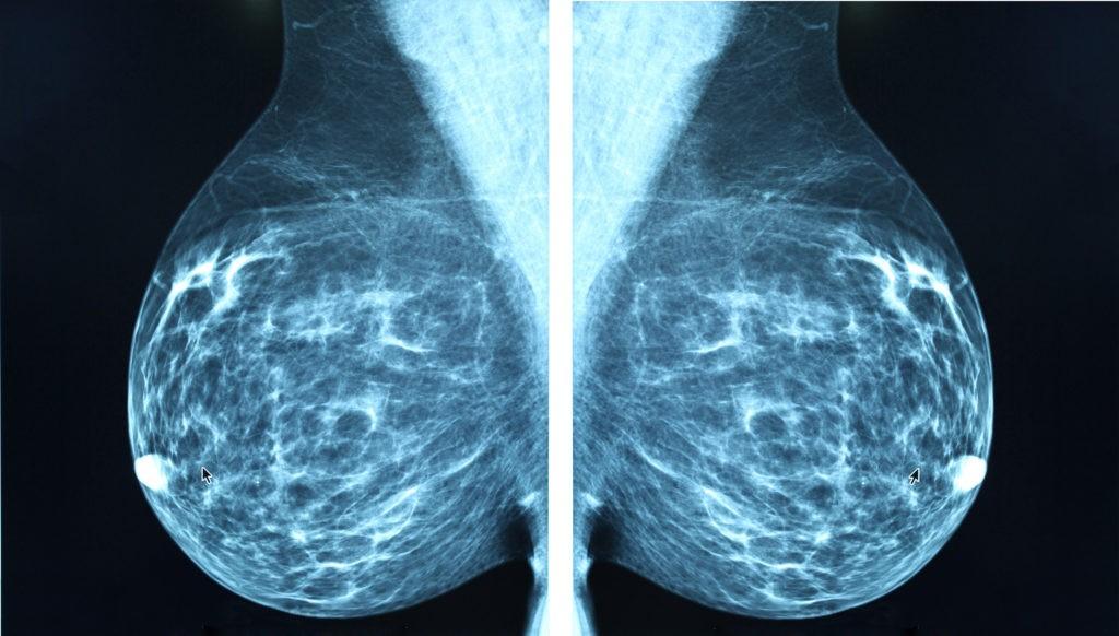 breast mammogram harley street emporium